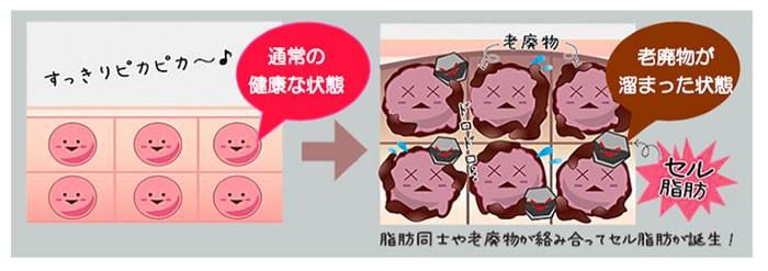 ハイパーナイフが特殊ハンドピースで脂肪撃退するメカニズム