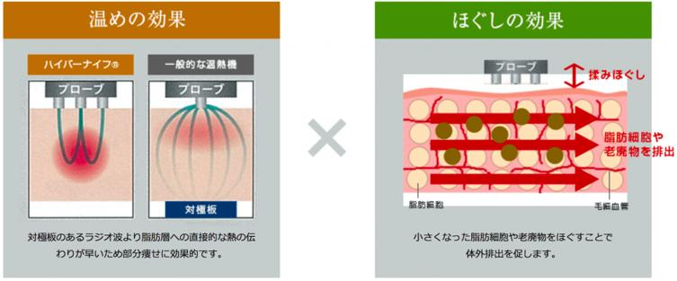 ハイパーナイフが温め×ほぐしの同時施術で頑固な脂肪に効く図
